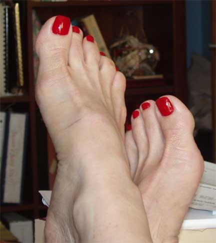 Susan's Toes